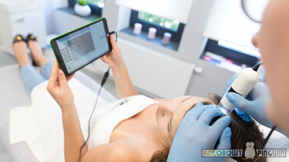 badanie skóry głowy, trycholog